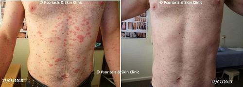 Điều trị bệnh vẩy nến thể giọt bằng phương pháp Dr Michaels trong 8 tuần.