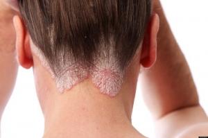 Triệu chứng bệnh vảy nến da đầu