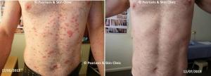 Mối liên hệ giữa bệnh vẩy nến với nhiễm trùng, nhiễm khuẩn và nấm - Doisongphapluat